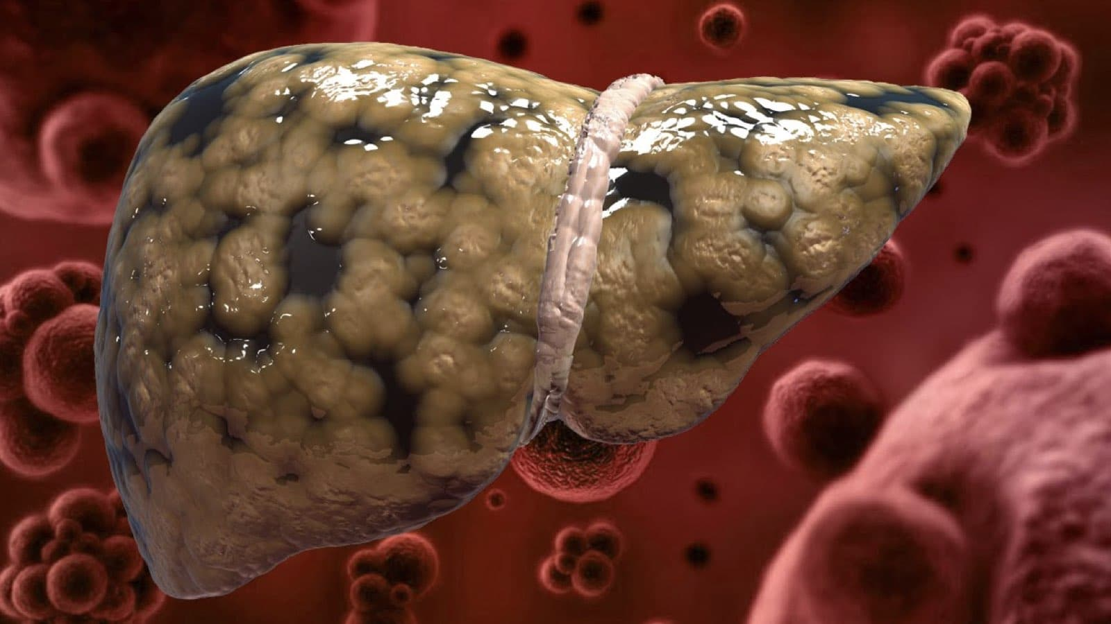 What Bad Habits Will Potentially Cause Your Liver To Suffer Heavily?